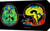Beautiful Brain, Digital Art / Computer Art, Realism, Anatomy, Canvas, By Curtis Dickman